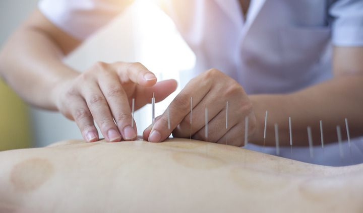 Acupuncture best practices tips feature photo
